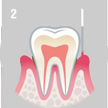 軽度な歯周病