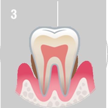 中度な歯周病